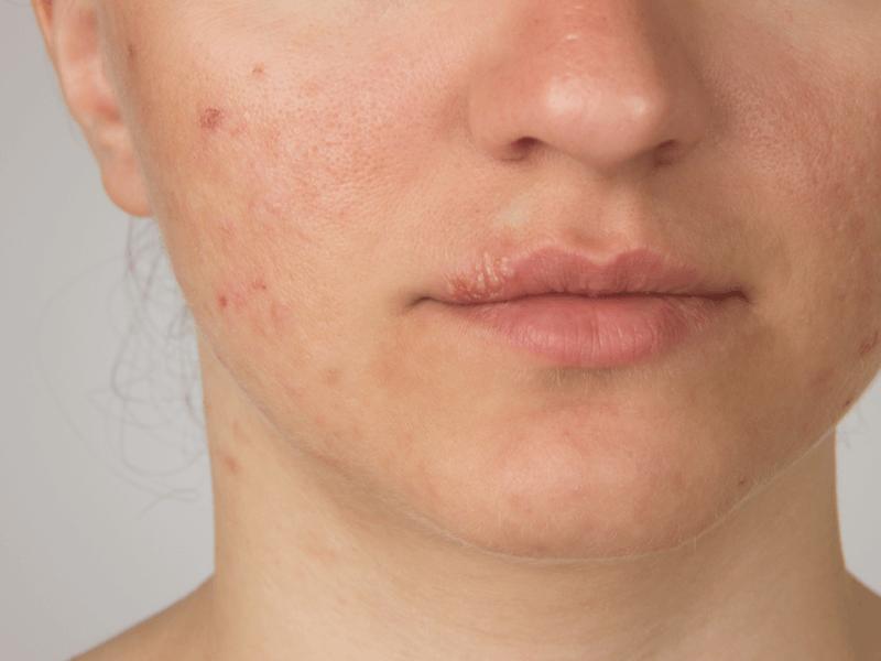 肌荒れで出てきてしまう赤みの原因と解消方法は?