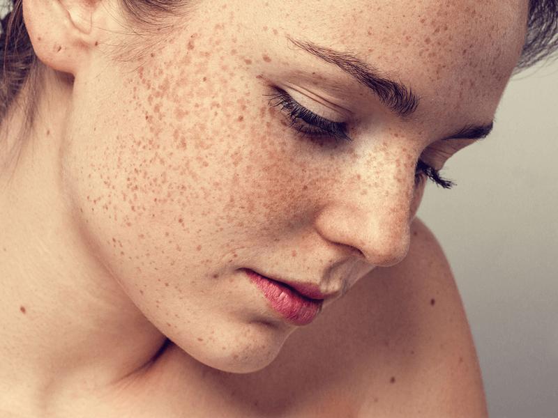 肌との結びつきの深いメラニンの働きや種類とは?シミ予防で美肌を維持しよう