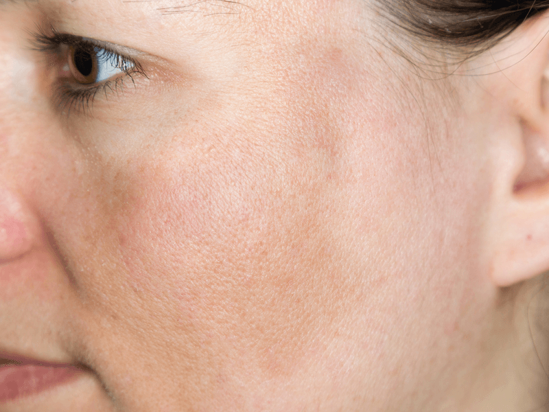 シミ対策用人気化粧品ランキング12選!セルフケアで美肌を手に入れよう