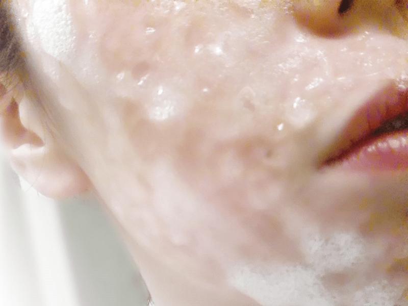 【炭酸パック体験】サロン仕様の「バブルジェル」を使ってみた!